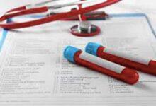 Photo of Αυξημένος αιματοκρίτης: Ποια νόσο κρύβει;