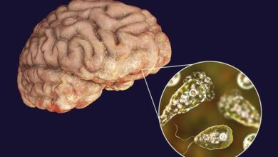 Photo of ΗΠΑ: Επικίνδυνη αμοιβάδα στο νερό τρώει τον εγκέφαλο